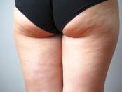 cellulite behandeln